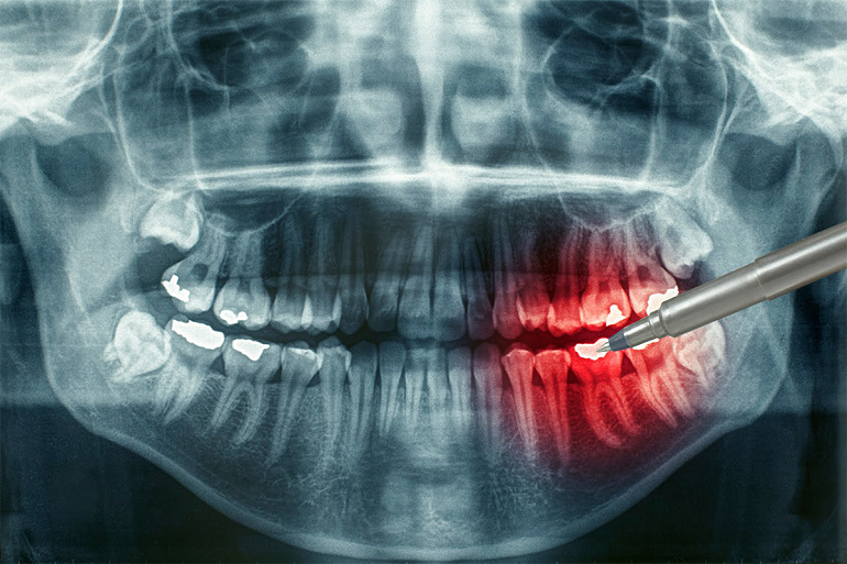 Панорамный снимок зубов. Зачем он нужен?