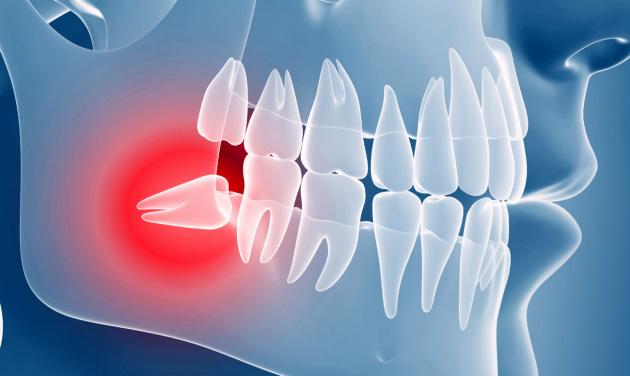 Диагностика ретинированных и сверхкомплектых зубов. Компьютерная томография челюстей детей и взрослых