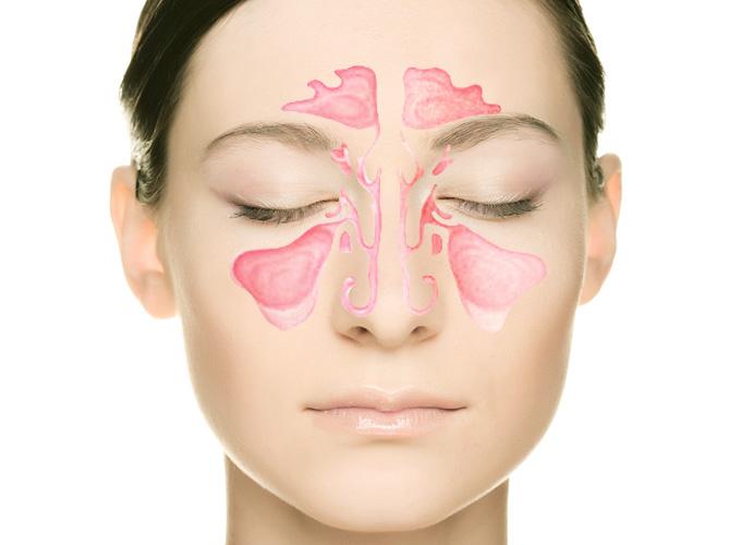 КЛКТ верхнечелюстных пазух носа. Диагностика риногенного и одонтогенного гайморита (синусита)