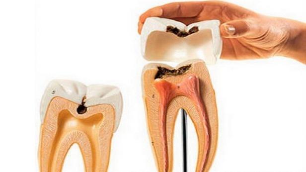 КТ при решении проблем с зубами, а не только при имплантации.