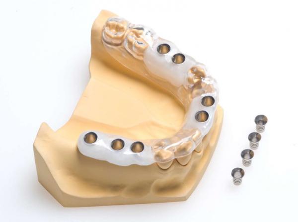3D снимок зубов для изготовления хирургических шаблонов