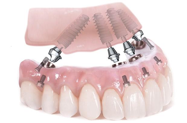 Имплантация зубов при полной адентии. Для чего необходимо КТ?