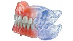 3D стоматология: цифровые технологии в стоматологии