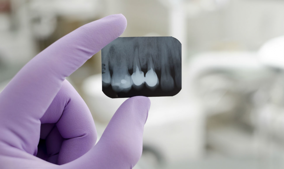 Где сделать в Харькове прицельный снимок зуба быстро и по доступной цене?