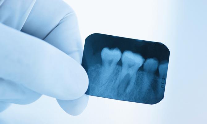 Прицельный снимок зубов по доступной цене