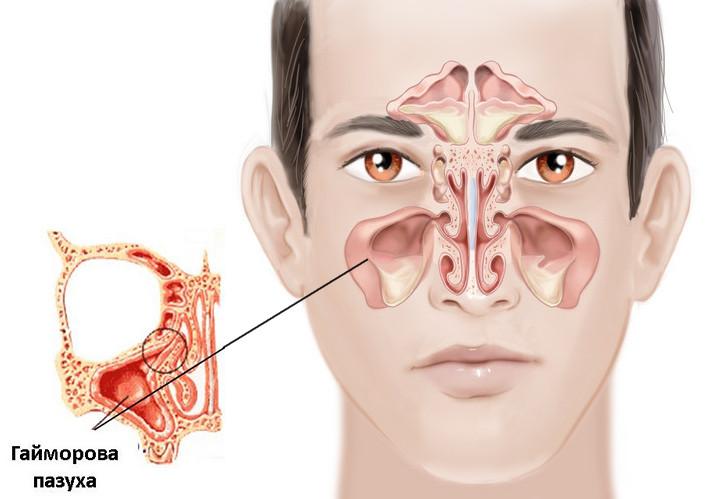 Компьютерная томография придаточных пазух носа в Харькове