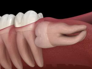 Лечение и удаление зубов мудрости. Для чего делают КТ?