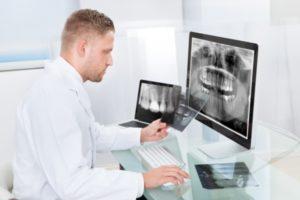 Какой снимок нужен для имплантации зубов?