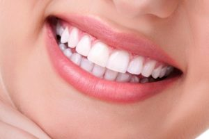 КТ при планировании протезирования или перепротезирования зубов