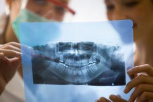 Панорамный и прицельный снимок зубов. В каких случаях достаточно информации данных методов диагностики?