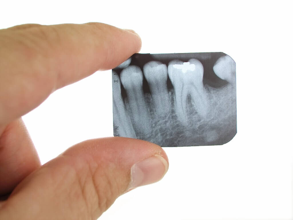 Прицельный снимок зуба на Салтовке