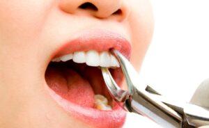 Удаление зубов без снимков. К чему может приводить?