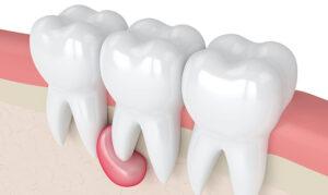 Диагностика кист и кистовидных образований челюстей